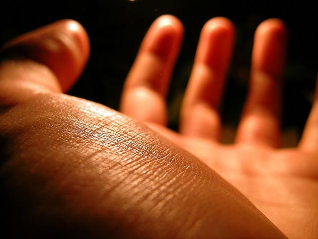 Mano de persona con TOC: trastorno obsesivo compulsivo